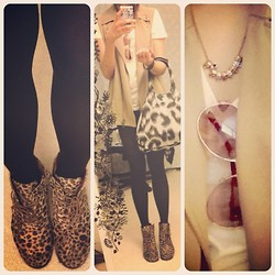Monica Ai - Iconemesis Iphone Case, Antichoche Leopard Booties, Club Monaco Long Vest, Forever 21 Plain White V Neck Tee, Vivienne Westwood Bowling Bag, Brandy Melville Usa Skull Necklace, Steve Madden Aviators - Casual/chic