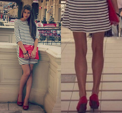 Maryana Yusypchuk - Zara Heels, Topshop Dress - Stars Can't Shine Without Darkness